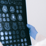 Neuromodulación para Fibromialgia, depresión y ansiedad